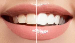 Get Your Teeth Whitened